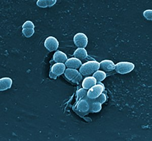 Bacteria like Enterococcus faecalis live in the human gut. Photo by Centers for Disease Control and Prevention