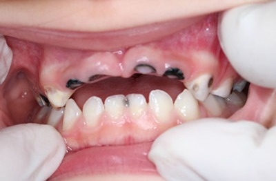 Many children without access to adequate dental care face loss of teeth due to decay. Courtesy of Dr. Ciissy Furusho