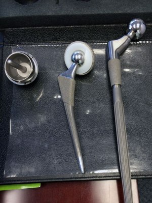 A Birmingham hip resurfacing device compared to two total hip replacement devices (l to r).